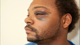 Injuries suffered during alleged SPD brutality - (4/11)
