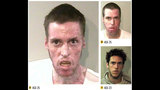 Photos: See the devastating effects of meth - (2/22)
