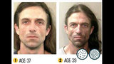 Photos: See the devastating effects of meth - (8/22)