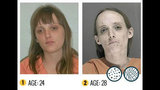 Photos: See the devastating effects of meth - (16/22)