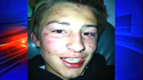 Group beating fractures boy's face - (1/4)