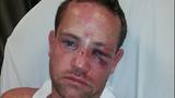 Victim Jason Jacobs_3721584