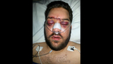 WARNING, GRAPHIC PHOTOS: Man hit in face with… - (4/6)