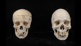 PHOTOS: Clues in mystery skull donation - (2/3)