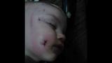 Pit bull bite girl, Stephanie_5849956