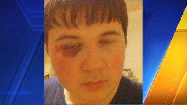 Tacoma mom says 8th grade son was assaulted 4 times this