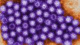 An electron micrograph of human norovirus.