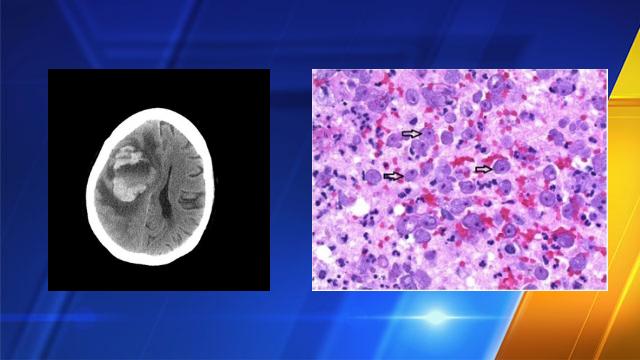 Doctor: Seattle woman who died of brain-eating amoeba used tap water in neti pot