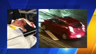 Auburn police searching for driver in hit-and-run that injured 15-year-old