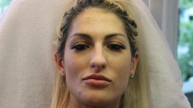 Police arrest woman suspected in theft of Botox services