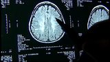 VIDEO: With no state guidelines, students struggle in classrooms after concussion